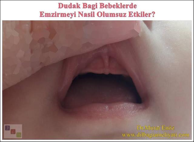 Üst Dudak Bağı Bebeklerde Emzirmeyi Nasıl Olumsuz Etkiler?