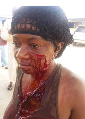 PHOTOS: Landlord And Wife Arrested After Tenant's Face Was Slashed Over Unpaid Bills
