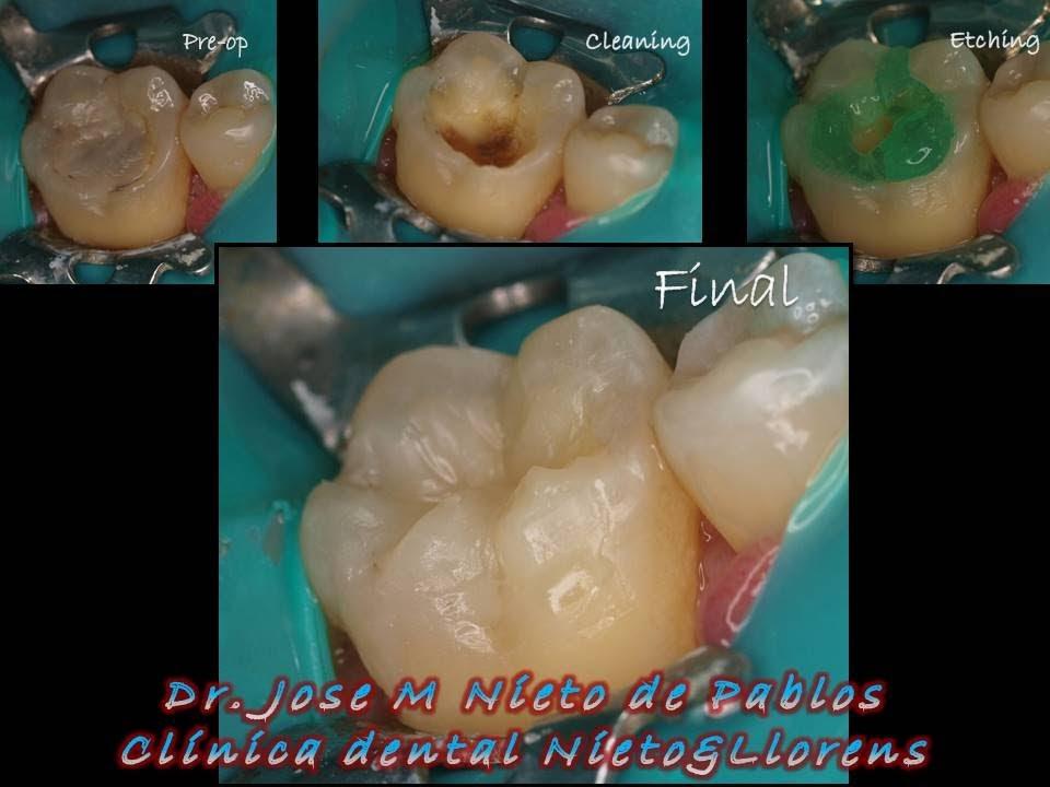Notas de Odontología