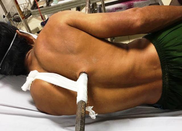 Phút sinh tử cứu người đàn ông bị xà beng dài hơn 1m đâm xuyên ngực lúc đào giếng