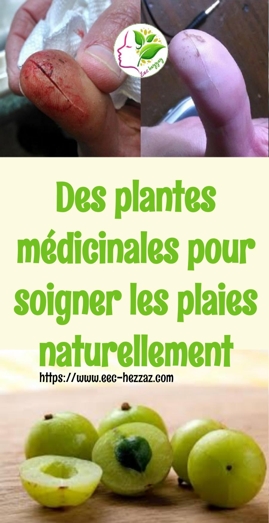 Des plantes médicinales pour soigner les plaies naturellement