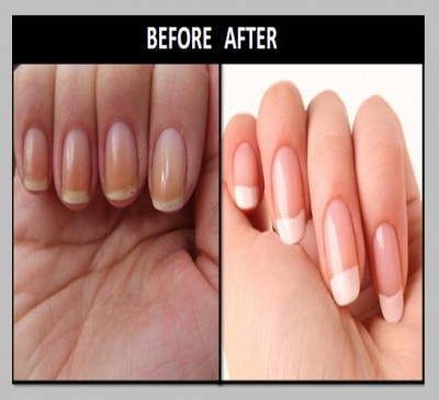 How To Whiten Yellow Nails Tips Make White Quick Home