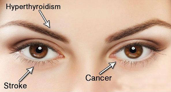 Penyakit yang Bisa Dideteksi dari Kondisi Mata