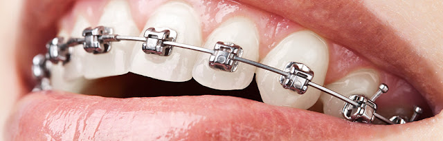 Dental Braces in Bangalore