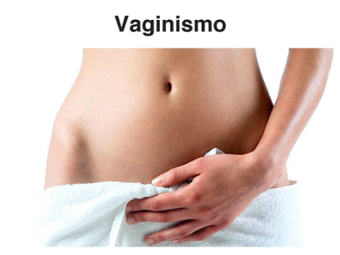 EBOOK VAGINISMO
