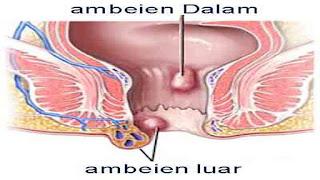 benjolan kecil pada anus