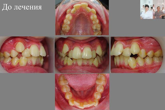 Прикус пациента, показания для удаления зубов