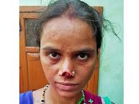 Sadis, Tak Mampu Bayar Mas Kawin Hidung Istri Dipotong