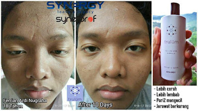 Jual Obat Penghilang Kantung Mata Trulum Skincare Urei Faisei Waropen