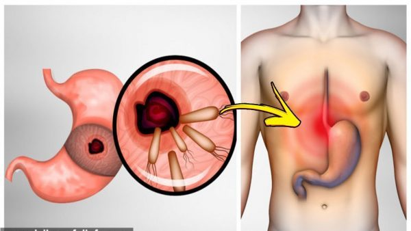 Here Is How To Kill The Bacteria That Causes Heartburn And Bloating