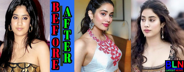 JANHVI KAPOOR Bollywood Actresses Before and After Plastic Surgery