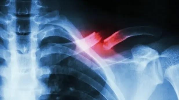 ما هي أنواع كسور العظام و وعلاماتها وأعراضها