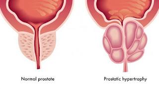 Pengelompokan Kanker Prostat (Pengklasifikasian)