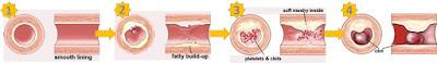 Proses terbentuknya plaque oleh kolesterol tinggi