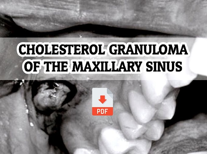 PDF: Cholesterol Granuloma of the Maxillary Sinus