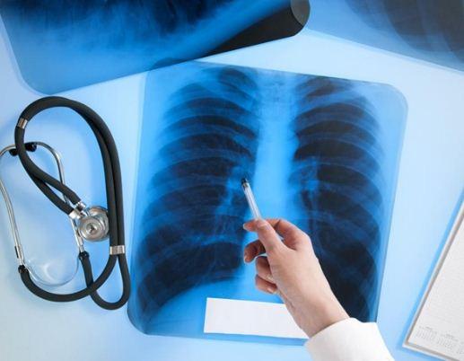 В Україні - епідемія туберкульозу
