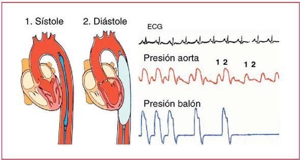 hipertensión arterial. <a href=