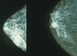 معلومات عن سرطان الثدي
