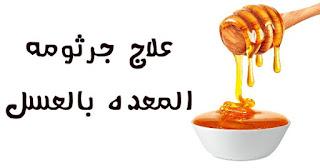 علاج جرثومة المعدة بالعسل - islandsal.com