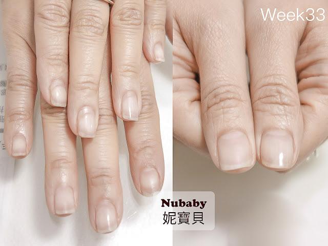 指甲矯正-甲型微調
