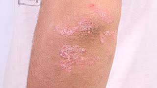Cara Mengobati Psoriasis Yang Efektif Juga Aman Tanpa Efek Samping
