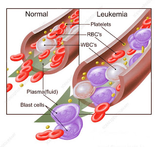 Diagram of Leukaemia