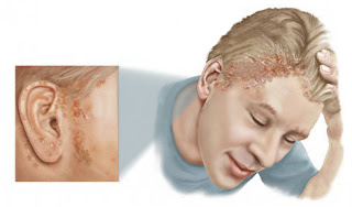 all natural psoriasis treatment in nagpur