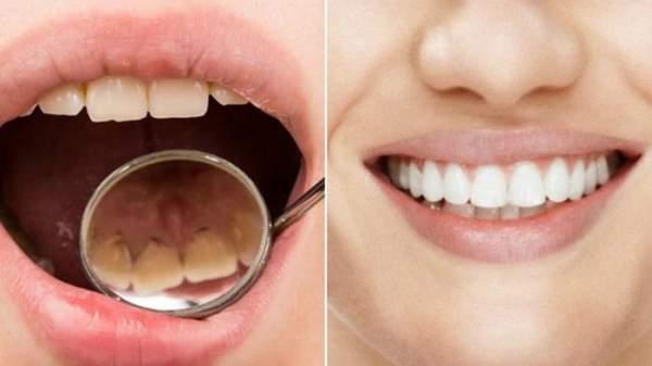 4 Cara Menghilangkan Plak Gigi Secara Alami