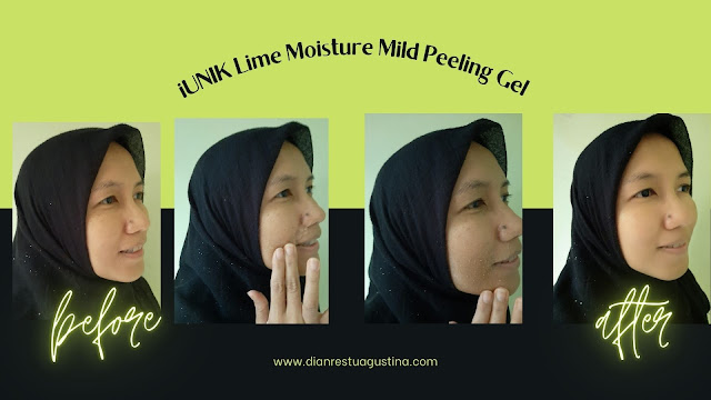 Review skincare iUNIK