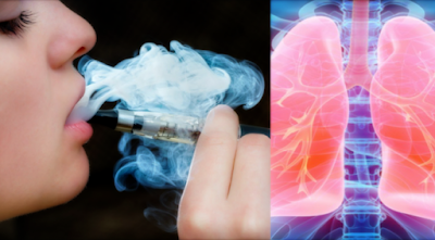 A Young Girl Develops A Serious Problem In The Lungs After 3 Weeks Of Electronic Cigarette