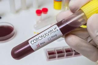76 pacientes confirmados com coronavírus na Bahia