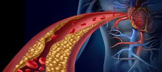 Cholesterol is also utilized by the body to produce hormones and cell membranes.