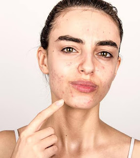 How To Treat Acne Acne Treatment Products Acne Treatment Cream Best Home Remedy For Acne Overnight Best Acne Treatment Acne Treatment Prescription Top 10home