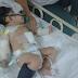 Anak Azman (Flop Poppy) Selamat Jalani Pembedahan Pertama