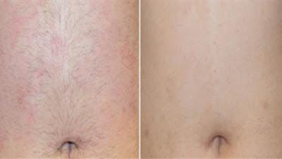 Comment se débarrasser des poils sur le ventre définitivement et naturellement