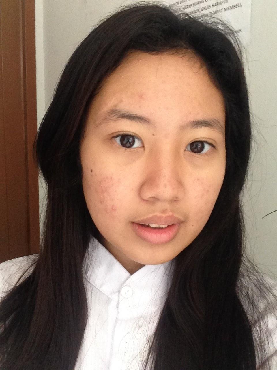 Wijaya Platinum Skin Care