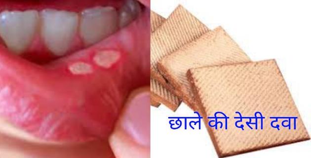 मुंह के छाले की देशी दवा | 1 दिन में छाले खत्म