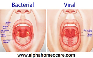 Tonsillitis and its homeopathy treatment