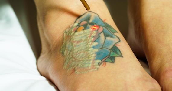 Eliminando un tatuaje multicolor
