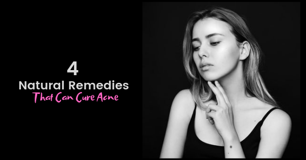 4 Natural Remedies That Can Cure Acne