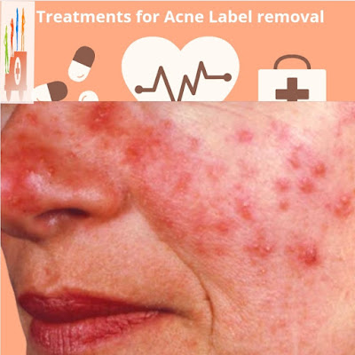 Treatments For Acne Label Removal