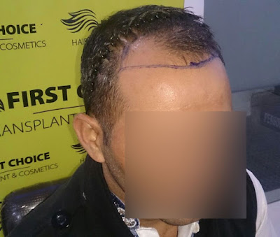 First Choice hair transplant surgery