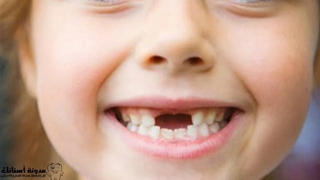 نصائح حول المواد المسببة لتسوس الأسنان وسبل الوقاية منها.
