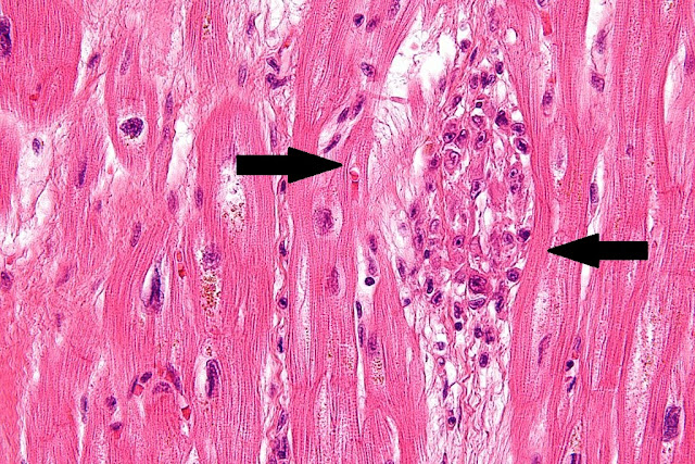 Gambaran mikroskopis jantung dengan pewarnaan hematoxylin eosin pada penderita penyakit jantung reumatik. Aschoff bodies
