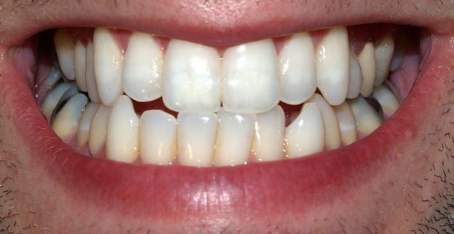 عادات خاطئة تدمر أسنانك