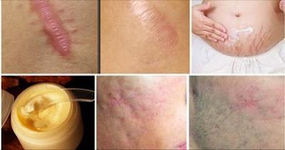 eliminar cicatrices naturalmente