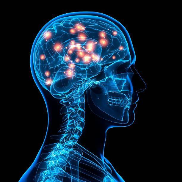5 Types Of Neurological Disorders You Should Know
