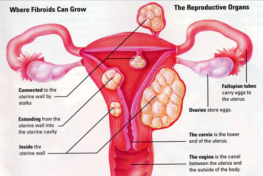 These Are The Early Signs Of Infertility That You Should Never Ignore! Know If You Are BAOG!