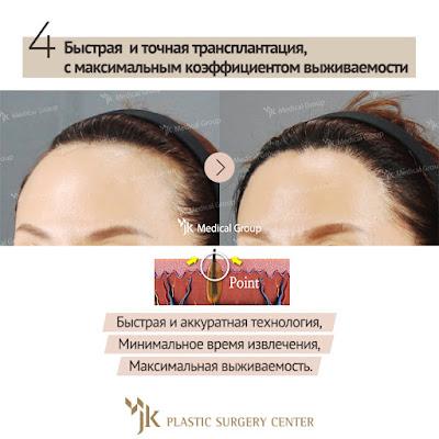 проблема выпадения волос у мужчин и женщин. Трансплантация волос, восстановление волос.  пересадка волос