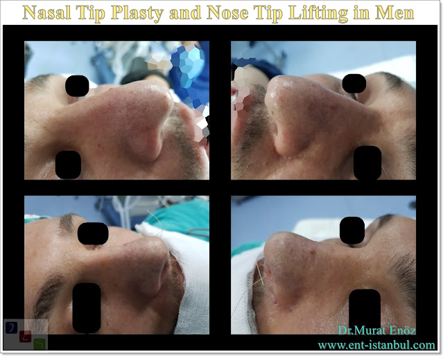 Droopy nose tip - Nasal tip plasty in men istanbul